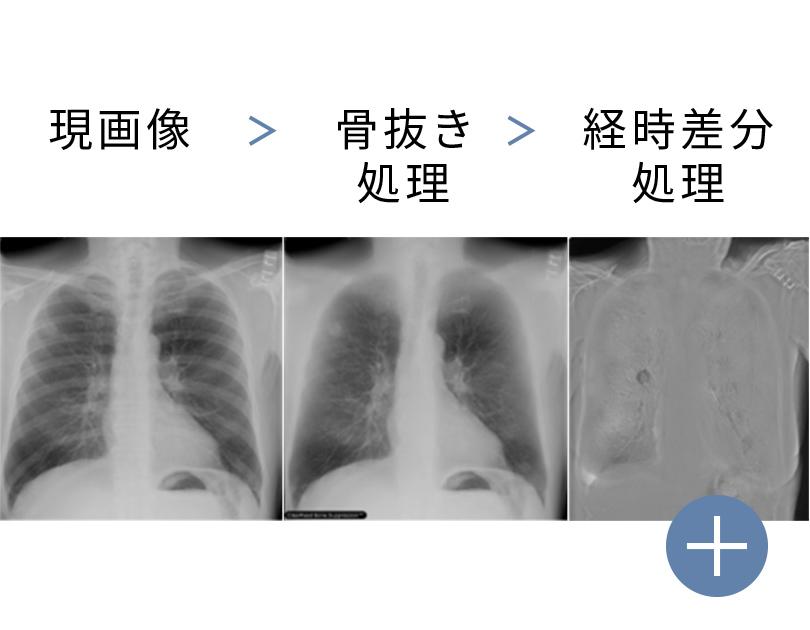 胸部X線骨組織透過/経時差分画像 ClearRead